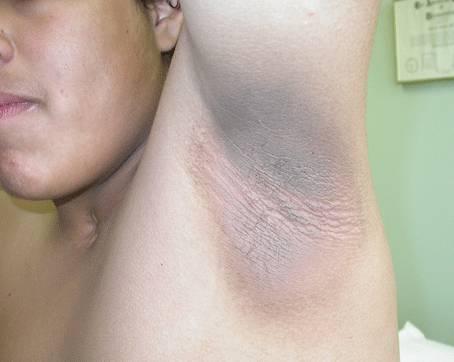 symptome aisselle